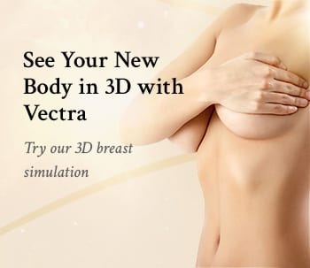 3D Simulation with Vectra Ad